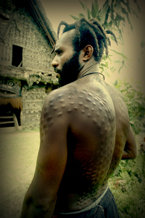 3126c5325b5c9 Patrick's oldest son Kingston showing off his impressive dorsal scars –